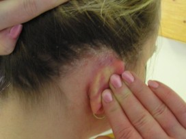 fül ekcéma tünetei